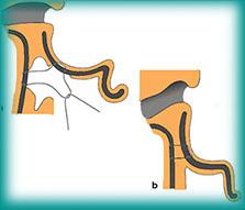 Procedimento da otoplastia