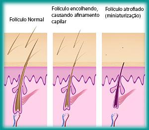 Miniaturização do fio de cabelo
