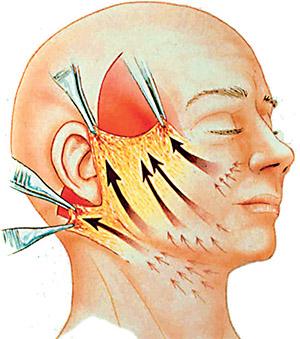 Procedimento do lifting facial